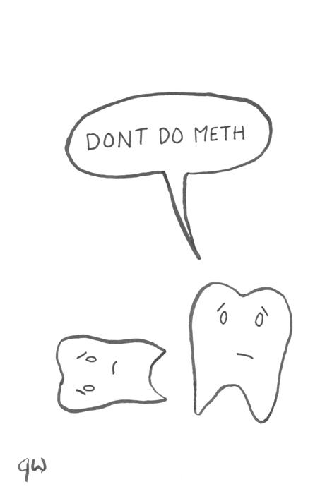 teeth02s